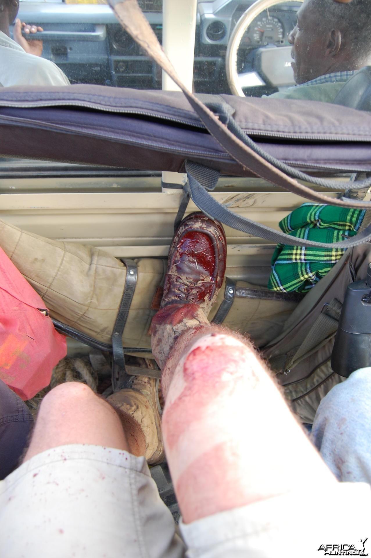 Bloody Shoes Tanzania