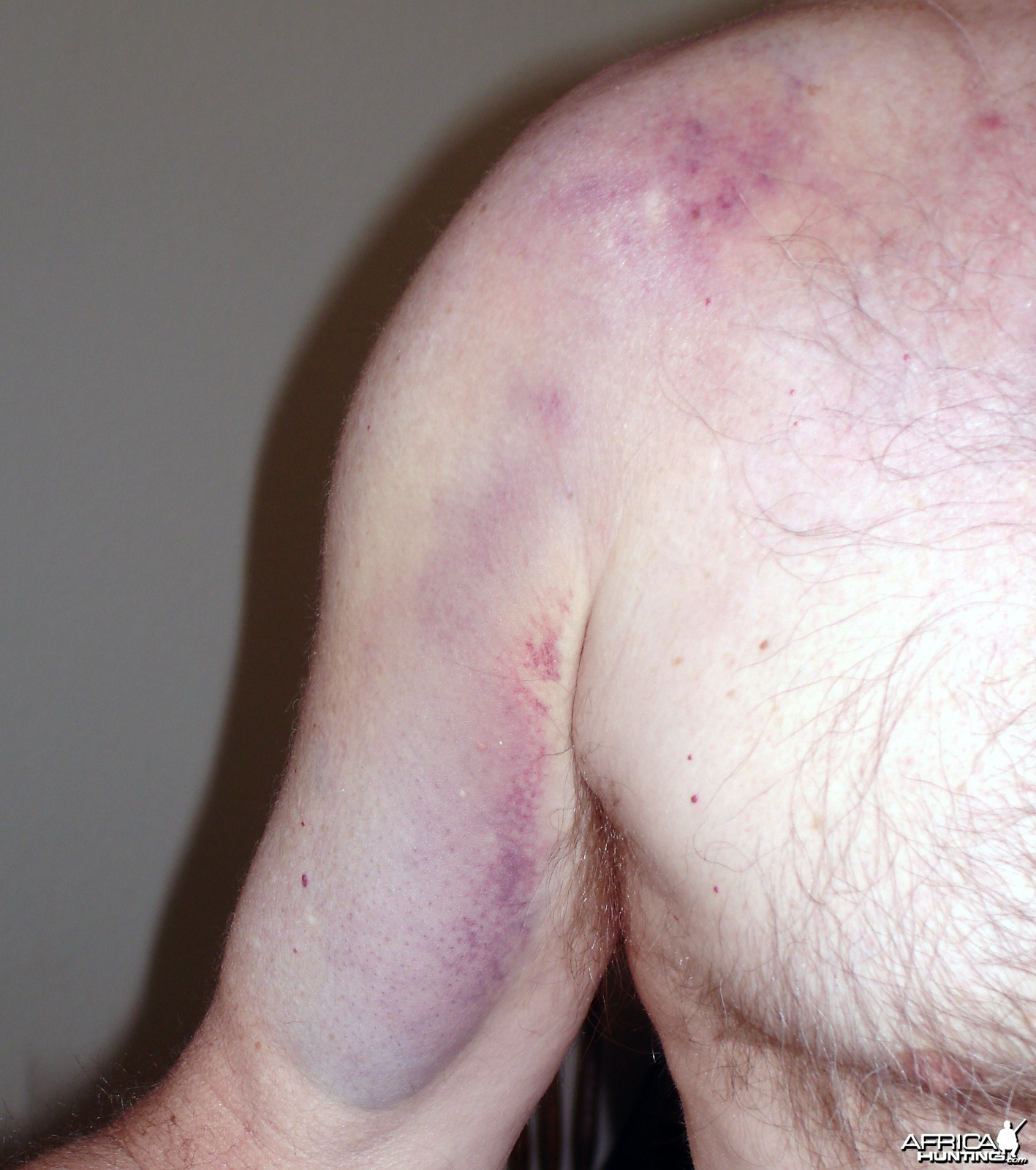 Shoulder bruise